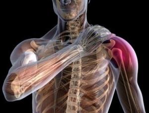 Неврит плечевого сустава боль в локтевом суставе с внешней стороны руки